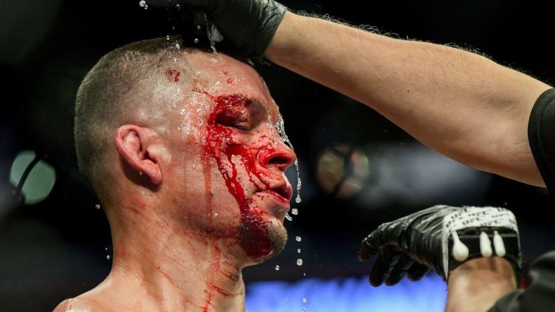 Diazs: ''Es asiņoju, kad man uzšķauda. Asinis vienkārši tur ir, bet tās nesāp''